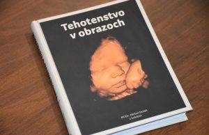Tehotenstvo v obrazoch kniha